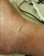 Figure 12. The wound healing result on day 11 after RPECS treatments, i.e., day 42 post diagnosis, see the text.