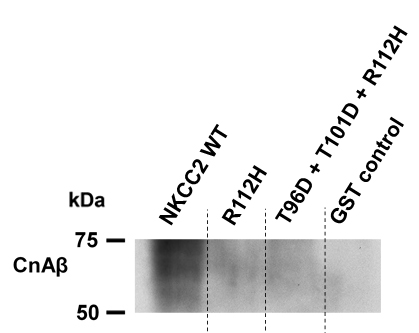 Figure 4:  Representative Western blot of eluates after GST pull-down using GST (control) or GST-fused rat wild-type NKCC2 N-terminus, a mutant rat N-terminus with substituted arginine (R112H) corresponding to the human R116H mutation, and a phosphorylation-mimicking mutant with substituted arginine (T96D + T101D + R112H) as baits. Detection with a CnAß antibody showed binding of the phosphatase to NKCC2-WT.  However, this interaction was substantially decreased by the arginine to histidine substitution. In addition, the R112H mutation also prevented the binding of CnAßto the phosphorylated-mimicking NKCC2 mutant.
